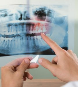 General Dentistry Image Xray