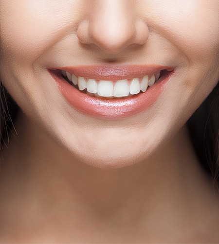 Teeth Whitening in Texas - All Smiles Dentistry