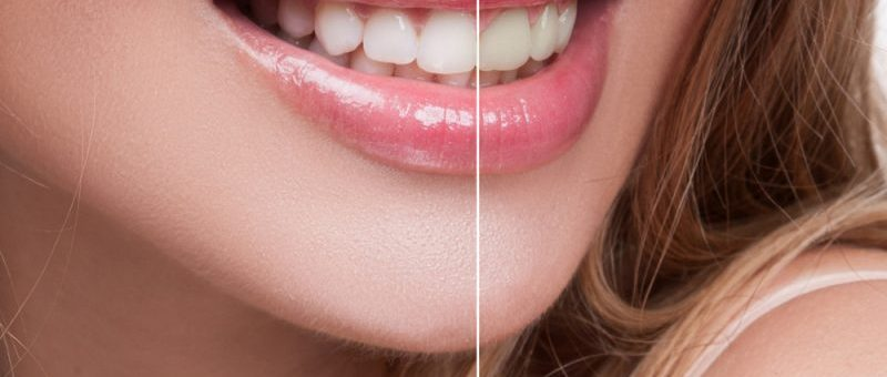 How to Remove Stains from Dental Bridges
