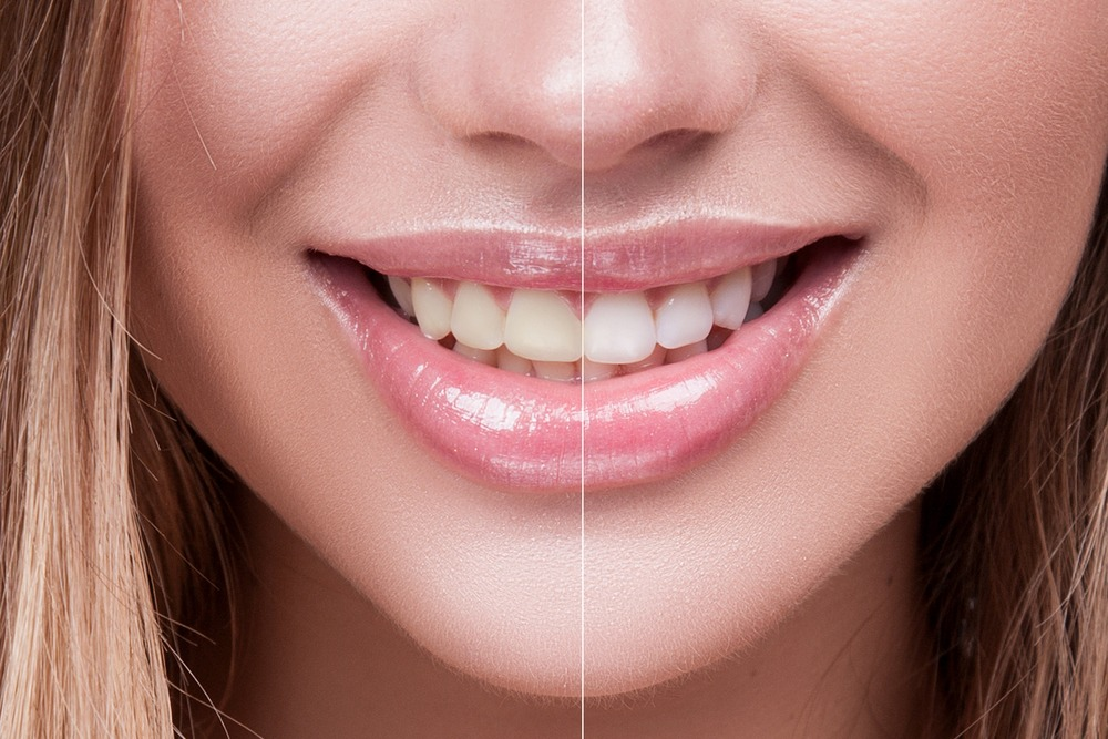 Before and After Dental Stains - All Smiles Dentistry