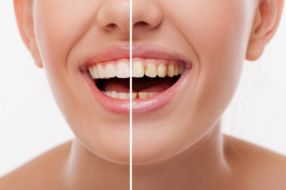 Before and After Dental Stains 2 - All Smiles Dentistry
