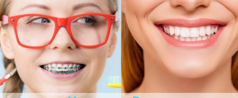 Dental Veneers vs Braces: What do Most People Prefer?