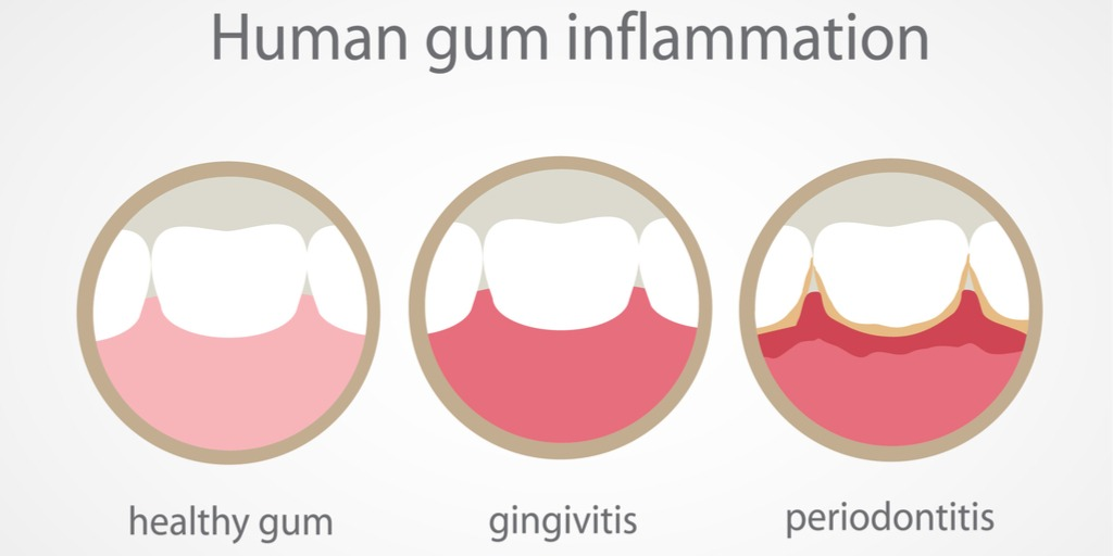 Effects on the Gums
