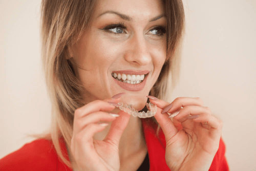 The Many Benefits of Adult Short Term Braces